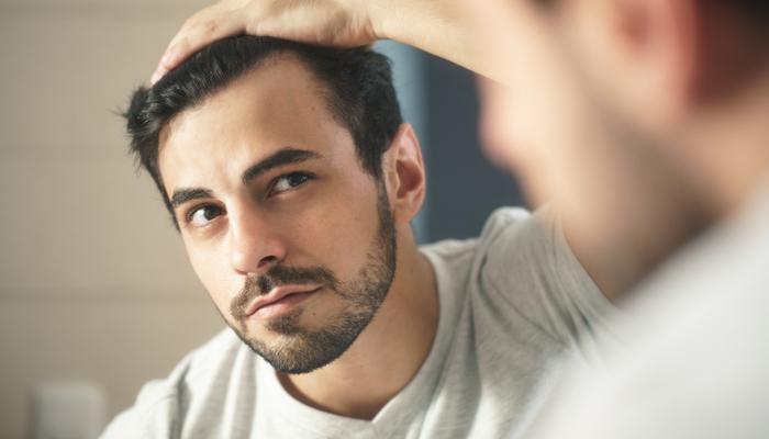 Best Hair Loss Remedies