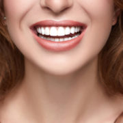 Teeth Whitening: Top Tips for a Healthy, White Smile