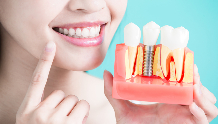 Dental Implants: Everything You Need to Know