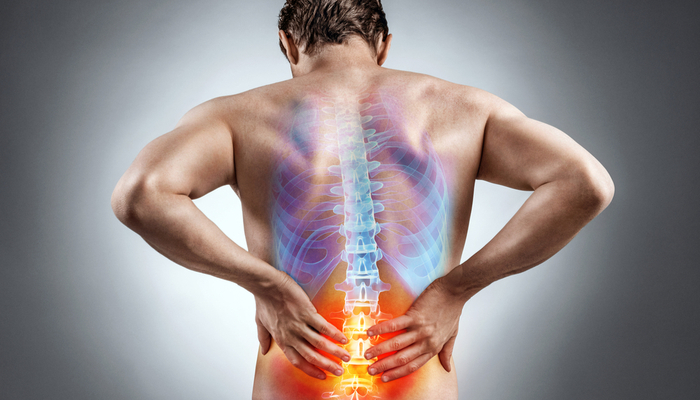 Best Ways to Relieve Back Pain without Breaking the Bank