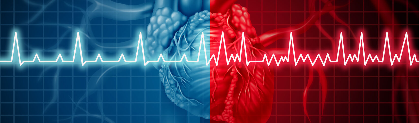 Atrial Fibrillation and Strokes: What you Need to Know