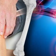 The Unbelievably Simple Tricks to Banishing Arthritis Pain For Good